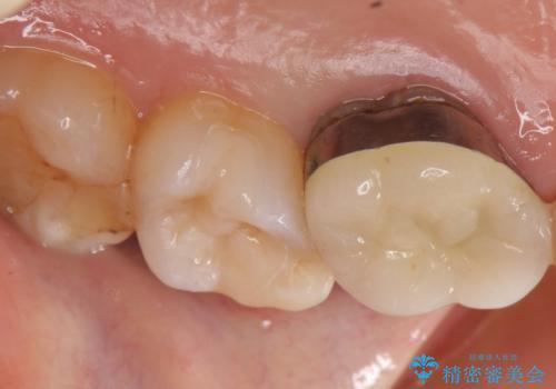 セラミックインレー 欠けた歯の治療の治療後