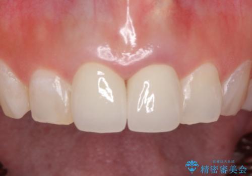 前歯を白くきれいに メタルフリーへの症例 治療後