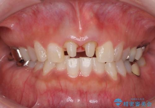 前歯を白くきれいに メタルフリーへの治療中