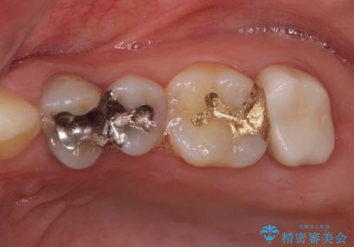 奥歯が痛い 歯の欠損と虫歯による奥歯の痛みを改善の症例 治療後