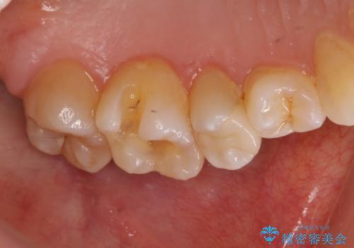 左上奥歯 銀のつめものがとれた セラミックインレーで白くの治療中