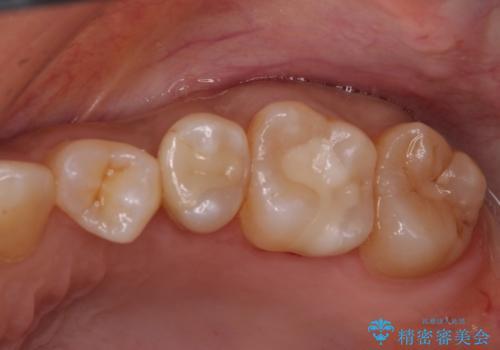 左上奥歯 銀のつめものがとれた セラミックインレーで白くの治療後