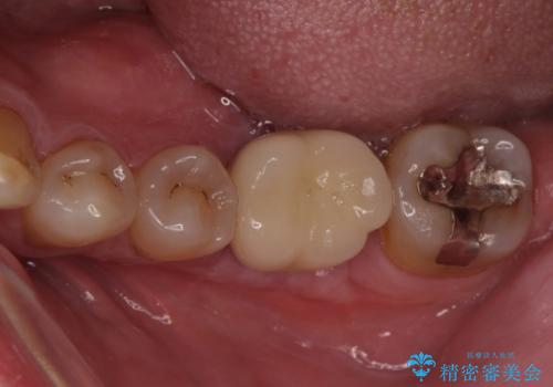 奥歯の割れてしまった歯 ストローマンインプラントによる咬合回復の治療後