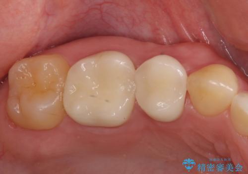 奥の銀歯を白くしたい オールセラミッククラウンによる補綴治療の症例 治療後
