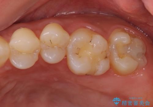 奥歯の虫歯をゴールドインレーで修復治療の治療中