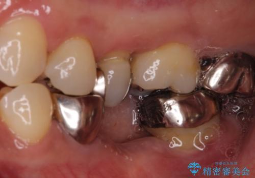 奥歯が抜けそう 部分矯正による咬み合わせの改善とインプラントによる補綴治療の症例 治療前