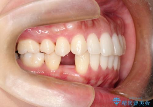 インプラント前提の矯正治療が終了した。銀座しらゆり矯正歯科からインプラント治療の紹介で来院。の治療前