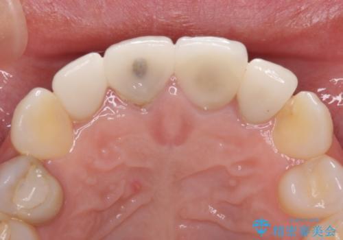 前歯が折れている 前歯のセラミックブリッジの治療前