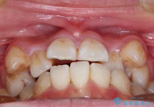 ハーフリンガルによる八重歯の治療 3incisor 症例の治療前