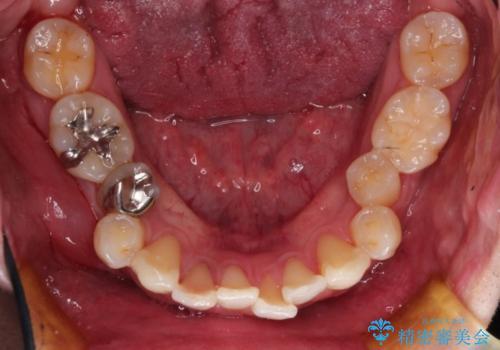インビザラインによる過蓋咬合・ガタつきの矯正治療の治療前