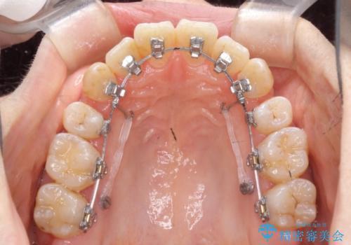 ハーフリンガルによる八重歯の治療 3incisor 症例の治療中