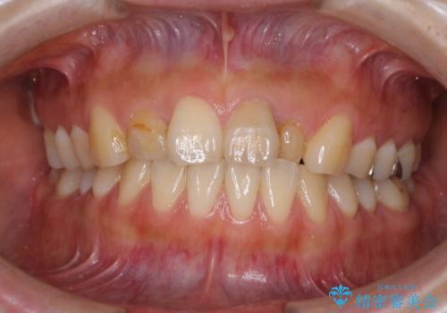 前歯の歯並びと変色を改善 インビザラインとオールセラミックの治療前