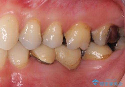 銀歯を白くしたい 40代女性の治療前