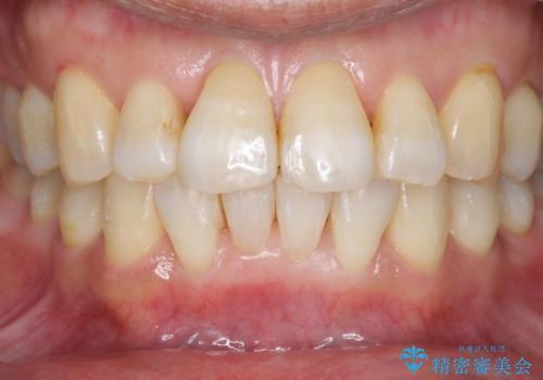 加齢で黄ばんだ歯をホワイトニングで白くの治療前