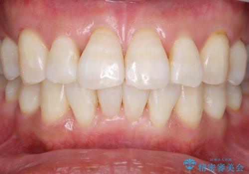 加齢で黄ばんだ歯をホワイトニングで白くの治療後