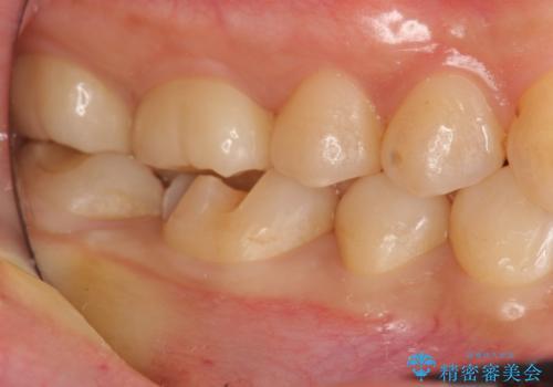 歯が欠けた セラミックインレー修復の治療中