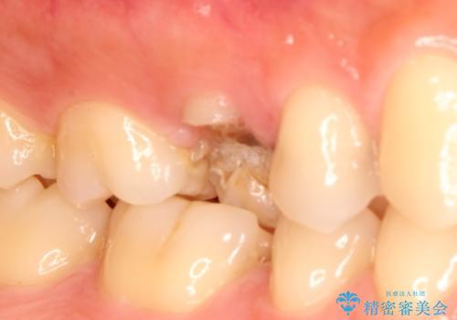 歯が割れたと来院。エクストリュージョンから歯冠修復まで。の治療前