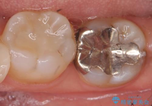 オールセラミッククラウン 奥歯の虫歯治療の治療前