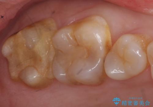 PGA(ゴールド)クラウン・セラミックインレー 治療途中で放置してしまった歯の治療の治療前
