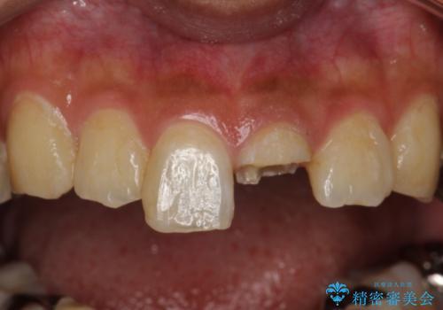 折れた前歯のセラミック修復 根管治療のやり直しもおこなうの治療前