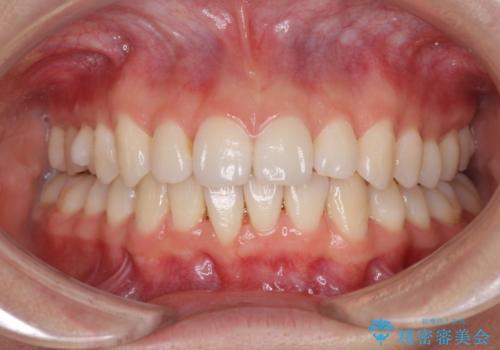 上の出っ歯を治したい インビザラインによる非抜歯矯正治療の治療中