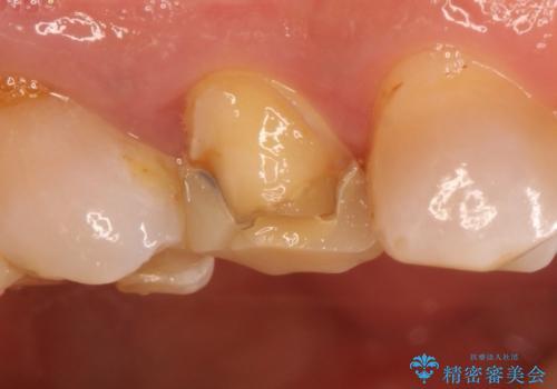 保険の白い歯が割れた。の治療前