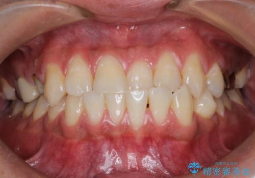 前歯の反対咬合 インビザラインできれいに修正の症例 治療前