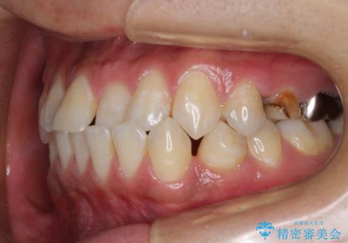 前歯の反対咬合 インビザラインできれいに修正の治療前