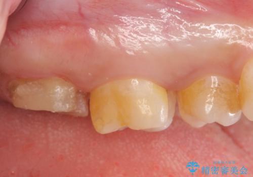 PGA(ゴールド)クラウン・セラミックインレー 治療途中で放置してしまった歯の治療の治療中