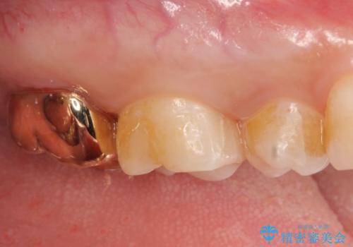 PGA(ゴールド)クラウン・セラミックインレー 治療途中で放置してしまった歯の治療の治療後