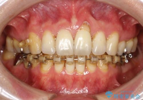 ハーフリンガル ワイヤー矯正 出っ歯の矯正治療の治療中