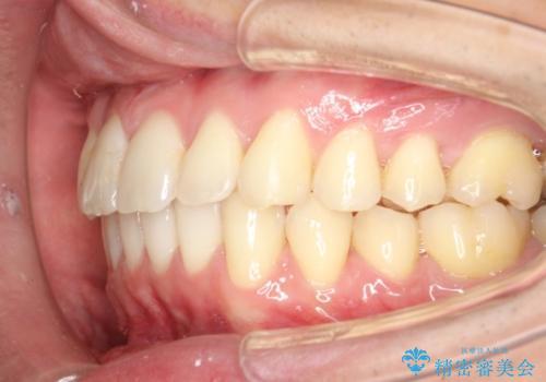 インビザラインによる過蓋咬合・ガタつきの矯正治療の治療後