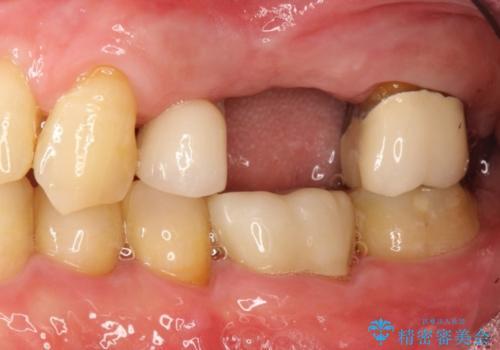 歯根破折により抜歯となってしまった奥歯のインプラントによる咬み合わせ回復の治療前
