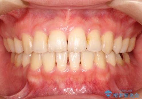 表側のワイヤー矯正 口元の改善をはかる抜歯矯正の治療後