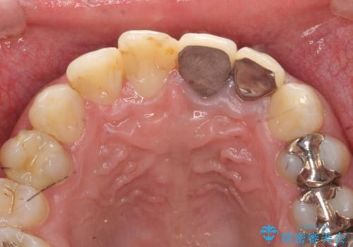 オールセラミッククラウン 前歯の審美治療の治療前