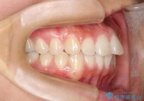 インビザラインで前歯のデコボコを目立たず矯正の治療前