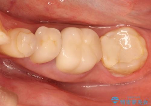 奥歯の被せものの症例 治療前