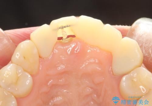 前歯のセラミックブリッジ 長すぎる前歯を部分矯正で修正するの治療中