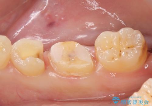 メタルボンドクラウン PGA(ゴールド)インレー 虫歯治療の治療中