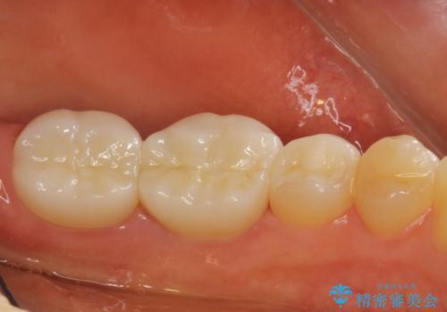 劣化した詰め物と虫歯の治療の治療後