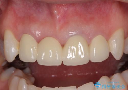前歯が折れている 前歯のセラミックブリッジの治療後
