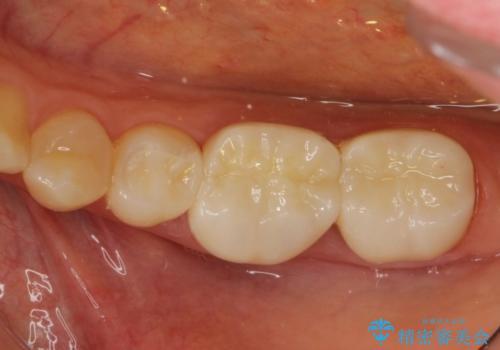 劣化した詰め物と虫歯の治療の症例 治療後