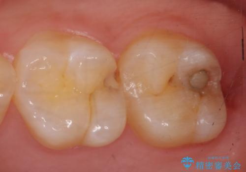 セラミックインレー しみる歯の治療の治療前