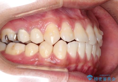 前歯の反対咬合 インビザラインできれいに修正の治療中
