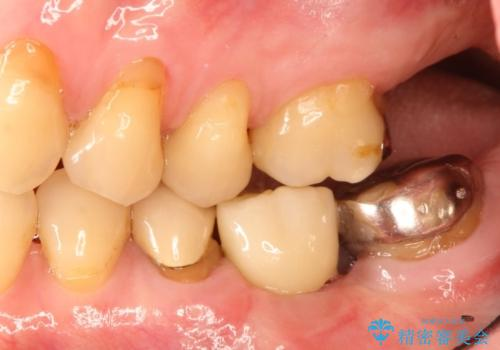 ショートインプラントによる奥歯の咬み合わせの回復治療の治療後