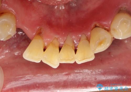 下の前歯 虫歯で神経が死んでしまった 根管治療から被せものまでの治療前