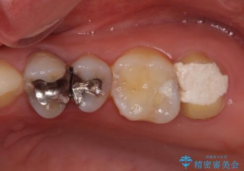 奥歯が痛い 歯の欠損と虫歯による奥歯の痛みを改善の治療前