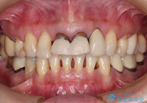 前歯の被せものの治療前
