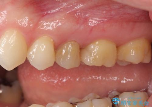 正面から見える奥の銀歯 セラミックインレーで改善の治療後