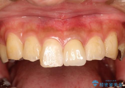 折れた前歯のセラミック修復 根管治療のやり直しもおこなうの治療後